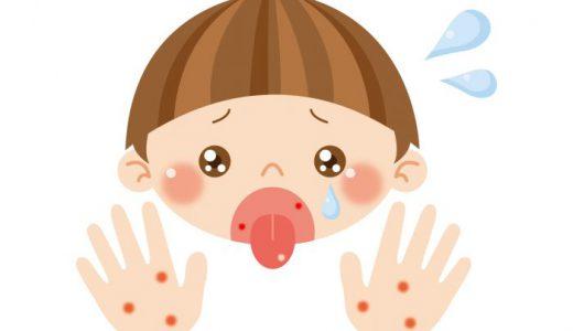手足口病の症状と対策は!?新型コロナウイルス感染症予防対策を最大限に活かそう!